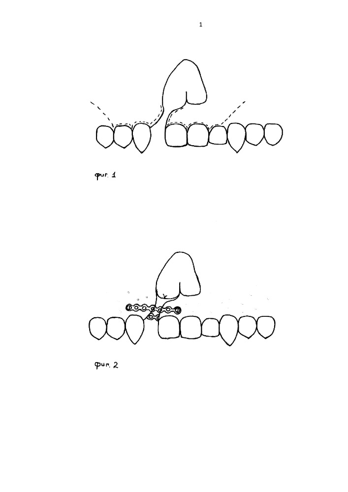 Способ пластики альвеолярного отростка при врожденных расщелинах губы и неба у детей