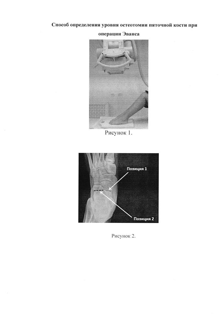 Способ определения уровня остеотомии пяточной кости при операции эванса