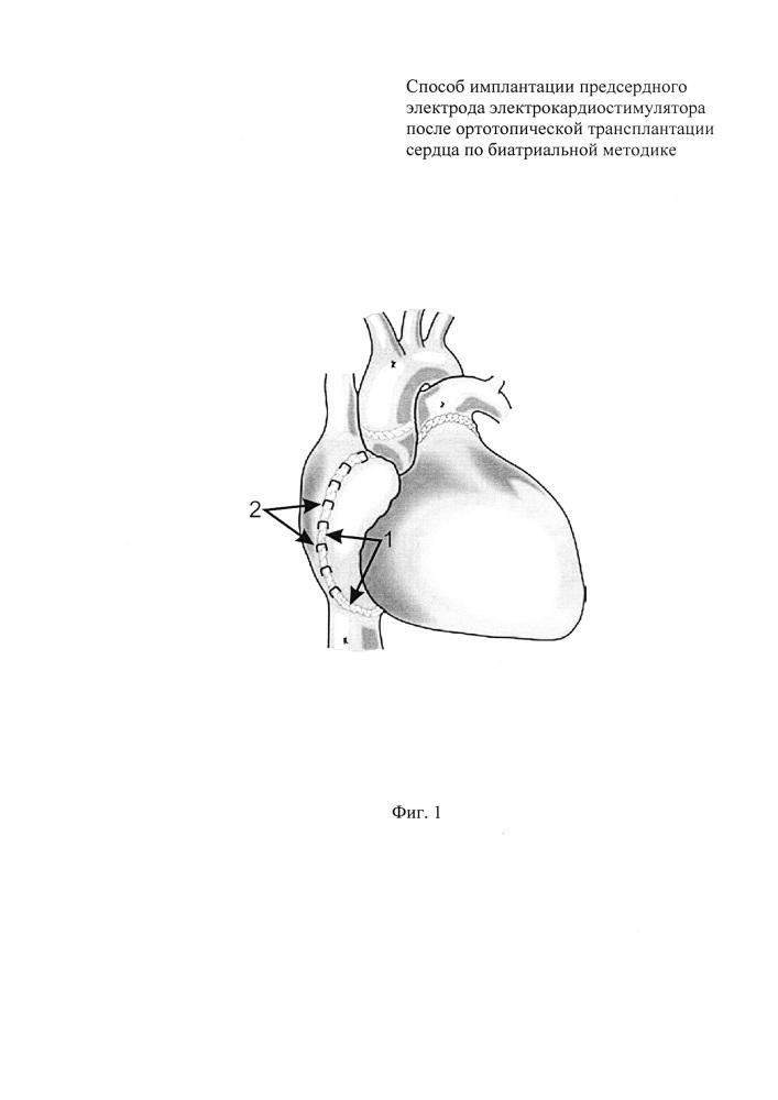Способ имплантации предсердного электрода электрокардиостимулятора после ортотопической трансплантации сердца по биатриальной методике