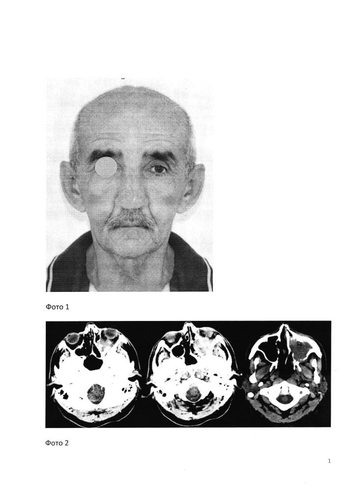 Способ доступа к верхней челюсти и скулоорбитальному комплексу при хирургическом лечении опухолей