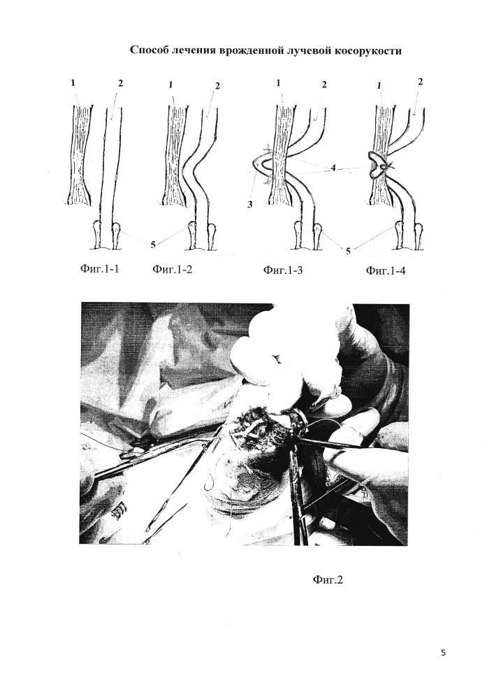 Способ лечения врожденной лучевой косорукости