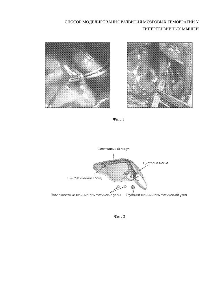 Способ моделирования развития мозговых геморрагий у гипертензивных мышей