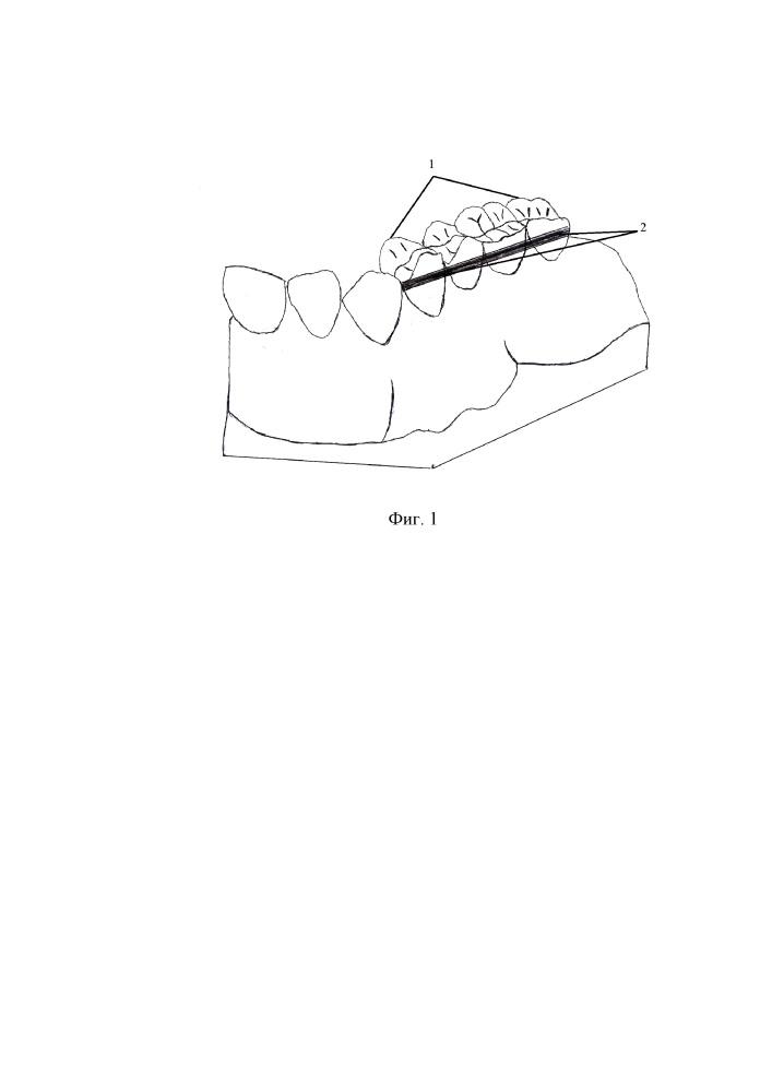 Способ вовлечения боковых групп зубов, находящихся в составе мостовидных протезов, в ортодонтическое лечение