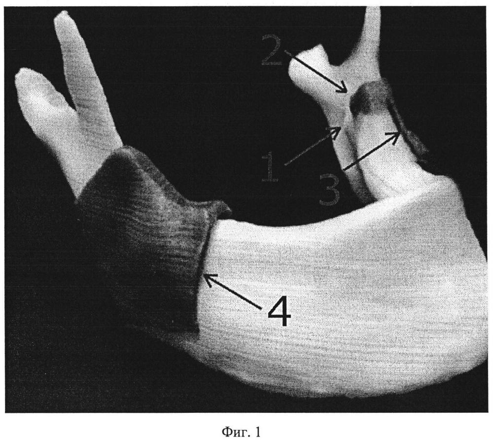 Способ лечения врожденных и приобретенных аномалий нижней челюсти