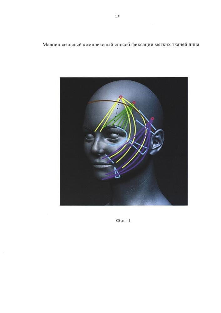 Малоинвазивный комплексный способ фиксации мягких тканей лица