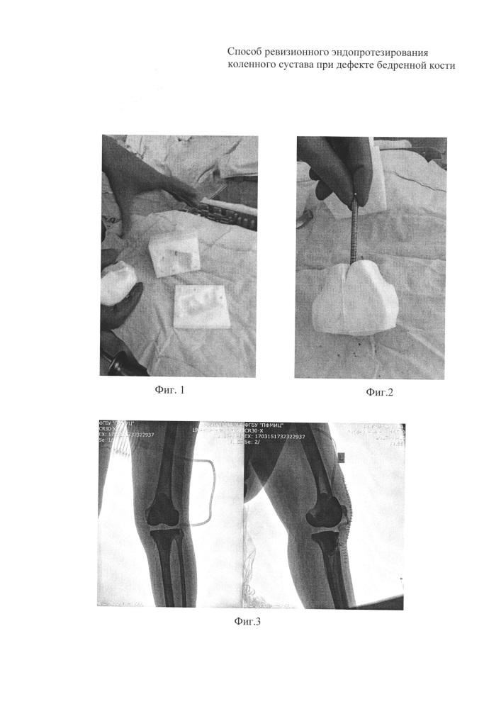 Способ ревизионного эндопротезирования коленного сустава при дефекте бедренной кости