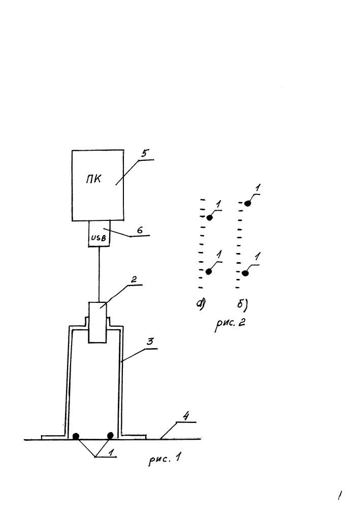 Способ определения объема движений в отделах позвоночника