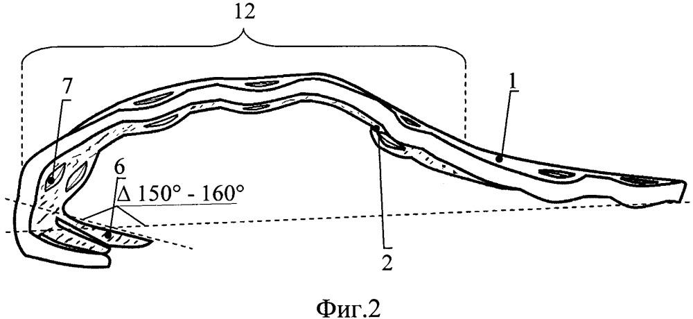 Фиксатор для остеосинтеза большого вертела
