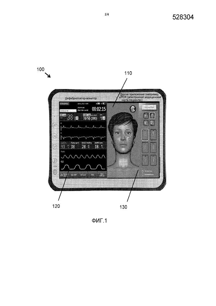 Дефибриллятор-монитор с пользовательским интерфейсом на основе сенсорного экрана для просмотра экг и терапии