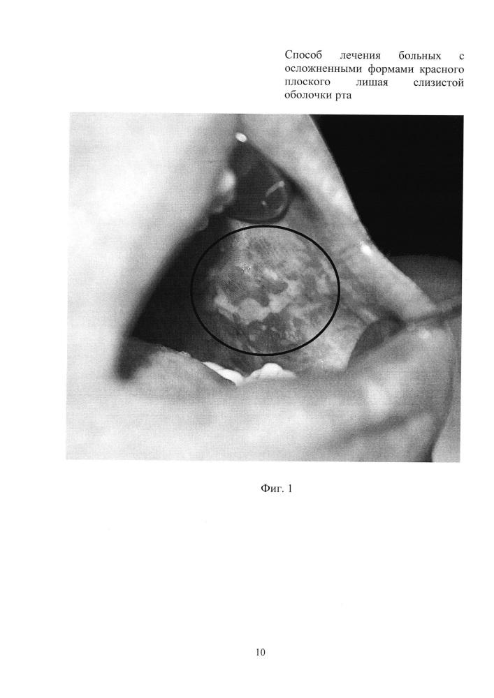 Способ лечения больных с осложненными формами красного плоского лишая слизистой оболочки рта