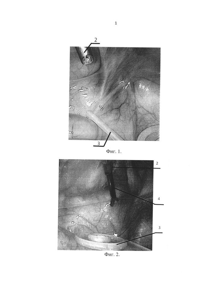 Способ имплантации перитонеального катетера