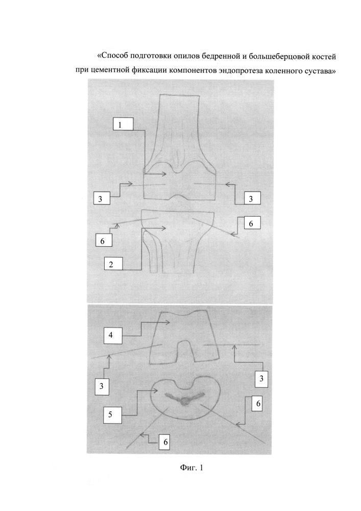 Способ подготовки опилов бедренной и большеберцовой костей при цементной фиксации компонентов эндопротеза коленного сустава