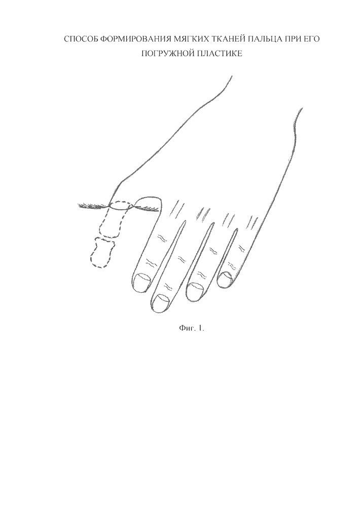 Способ формирования мягких тканей пальца при его погружной пластике