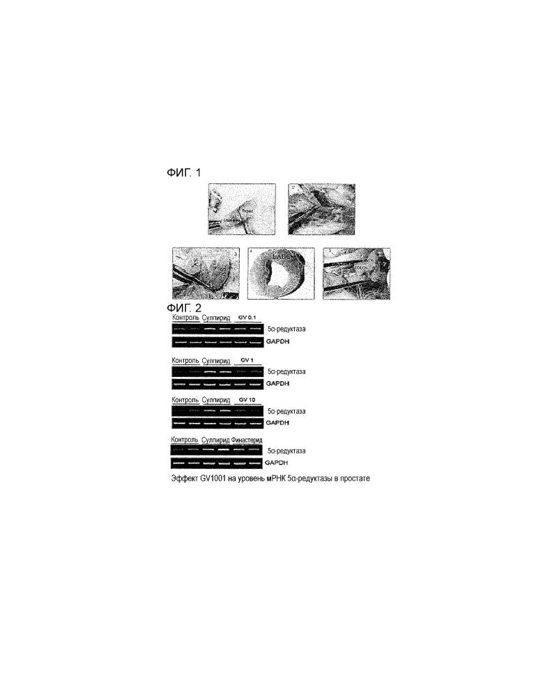 Композиция для лечения и профилактики доброкачественной гиперплазии простаты