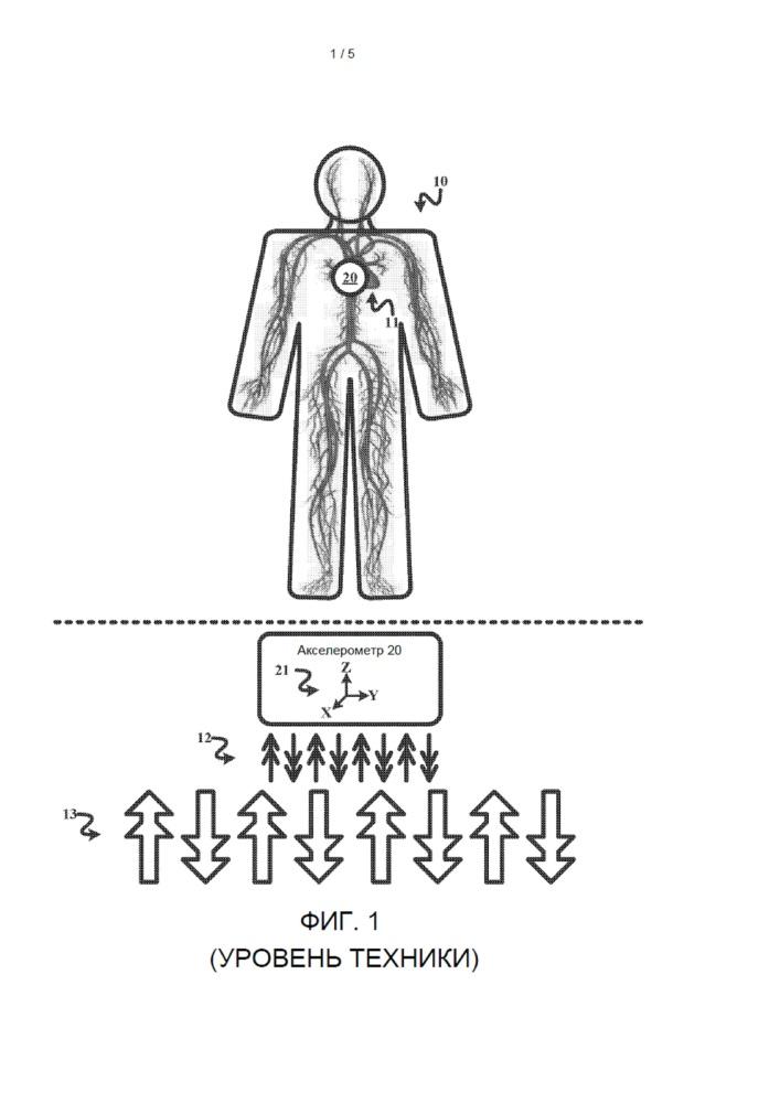 Противостоящие акселерометры для пульсометра