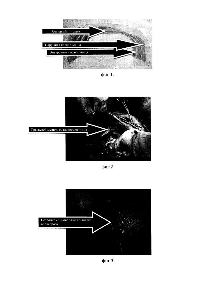 Способ корригирующей пластики при гигантских послеоперационных грыжах с дефицитом тканей передней брюшной стенки