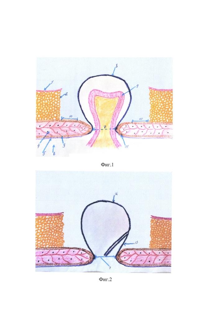 Способ герниопластики обширных и гигантских послеоперационных вентральных грыж