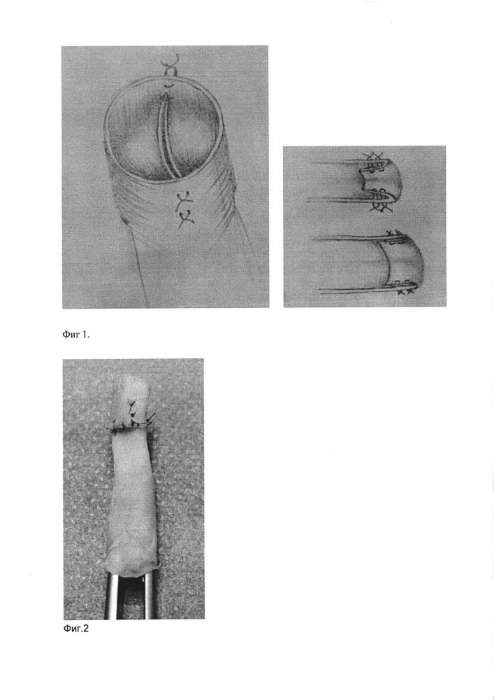 Способ открытой хирургической реконструкции венозного клапана