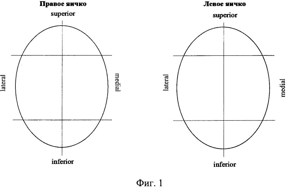 Способ лечения мужского бесплодия при высоком показателе днк-фрагментации эякуляторных сперматозоидов
