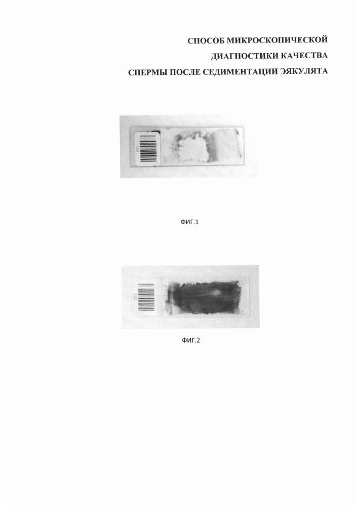 Способ микроскопической диагностики качества спермы после седиментации эякулята