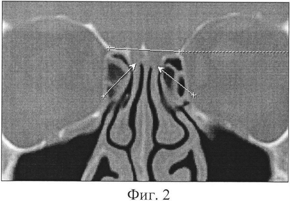 Способ прогнозирования риска перфорации крыши носа при эндоскопических эндоназальных хирургических вмешательствах
