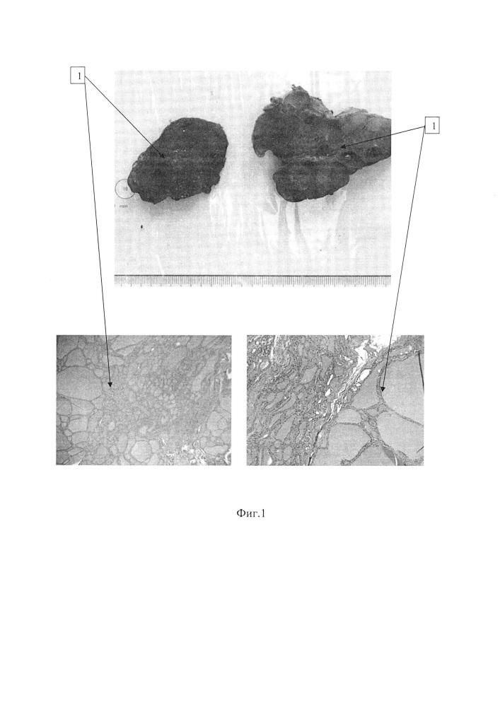 Способ хранения биопсийно-операционного материала щитовидной железы