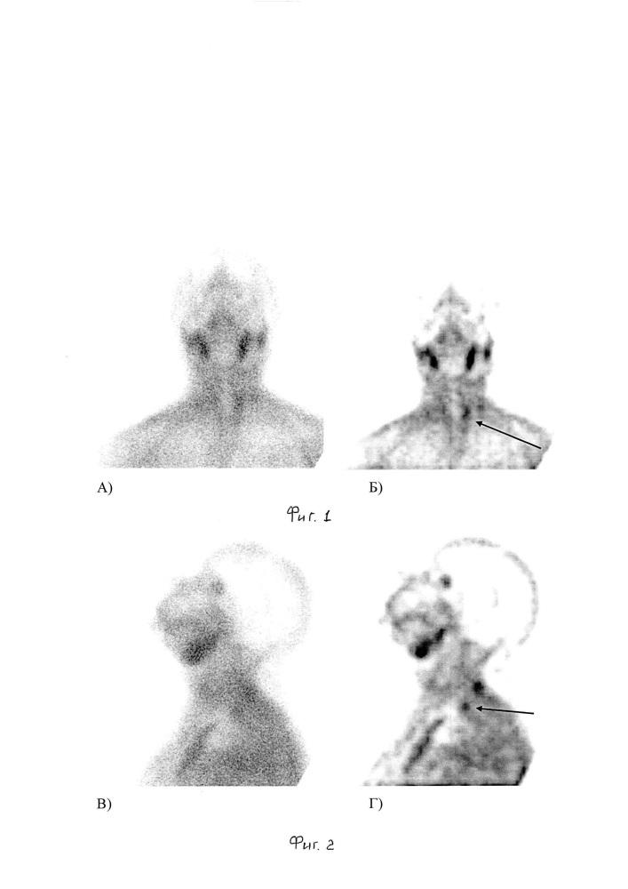 Способ диагностики гиперфункционирующих паращитовидных желез