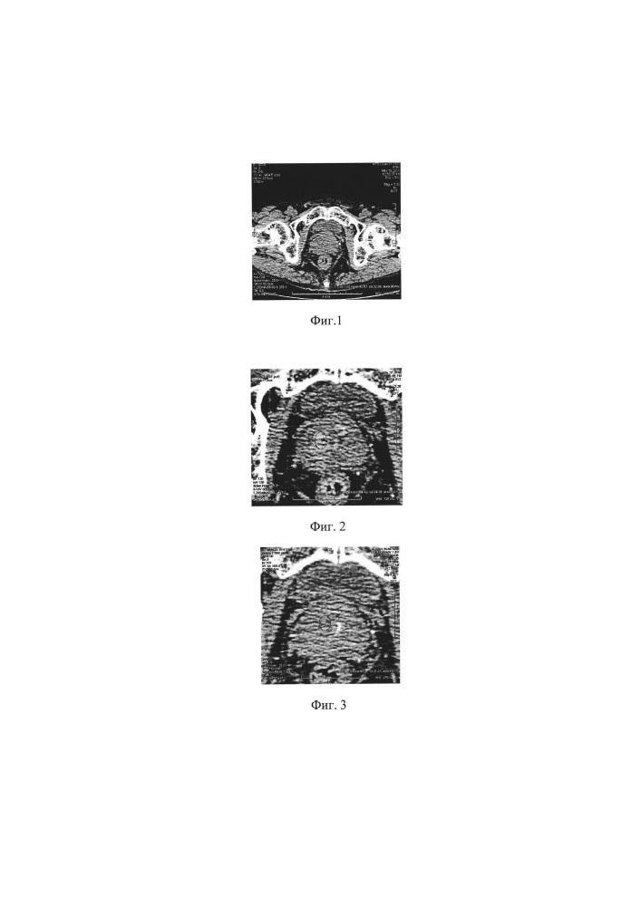 Способ дифференциальной диагностики образований предстательной железы с использованием анализа градиента вымывания
