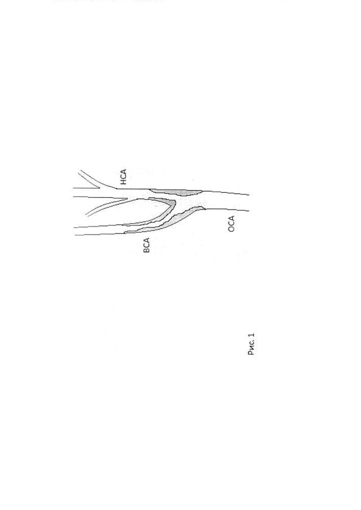 Способ каротидной эндартерэктомии с использованием лоскута, сформированного из затылочной артерии