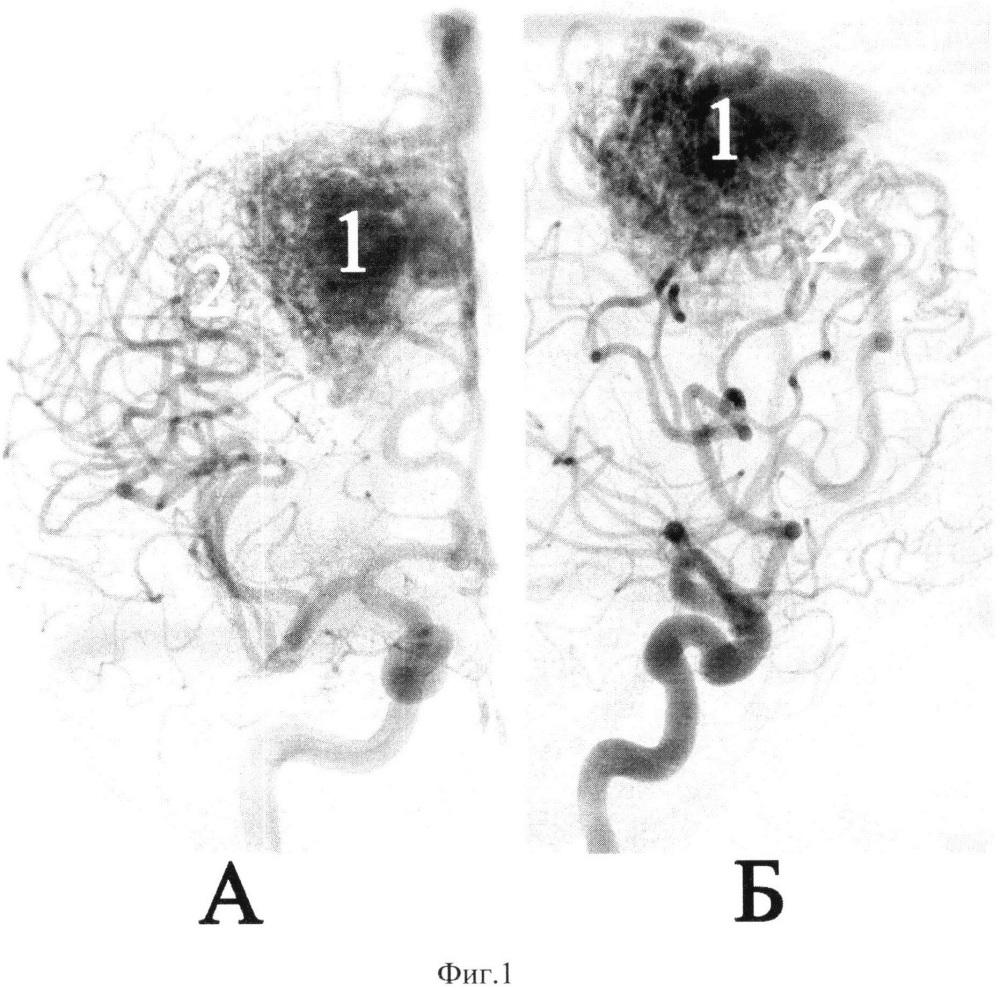 Способ эмболизации диффузных артериовенозных мальформаций головного мозга