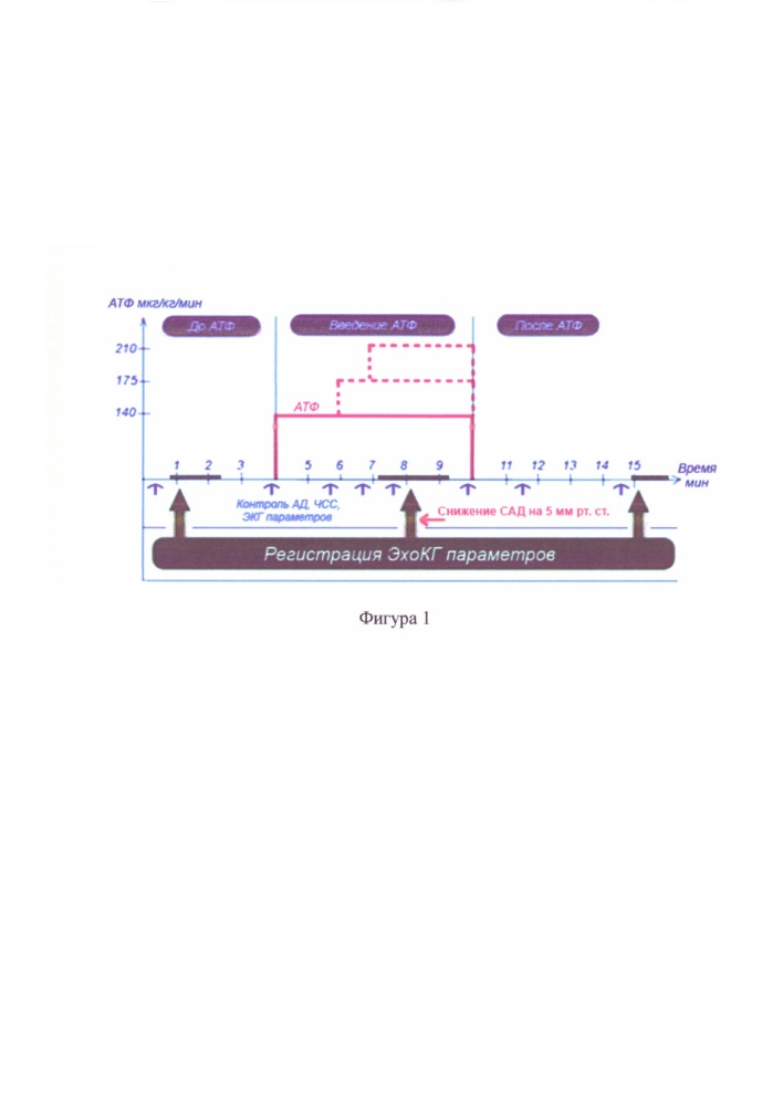 Способ диагностики достижения стадии устойчивой субмаксимальной гиперемии миокарда при проведении нагрузочной пробы с внутривенным инфузионным введением аденозинтрифосфата