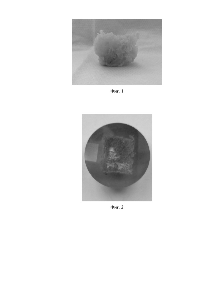 Способ подготовки образцов костной ткани человека для исследования методом растровой электронной микроскопии