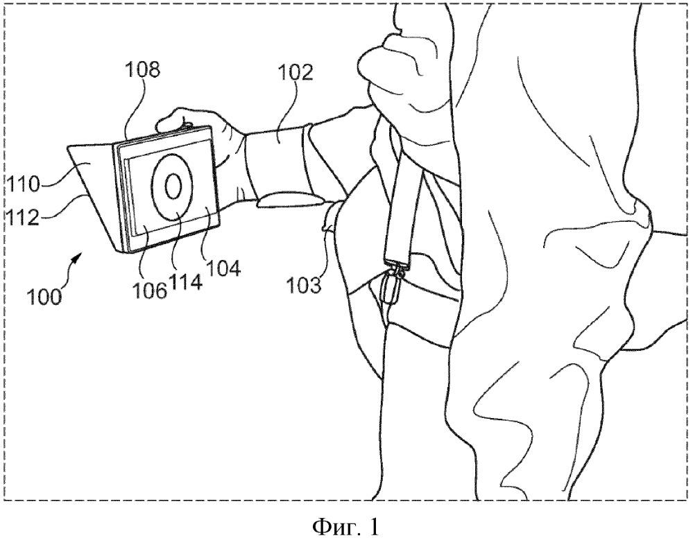 Способ и устройство для захвата и сохранения в цифровой форме изображений места раны, свища или стомы
