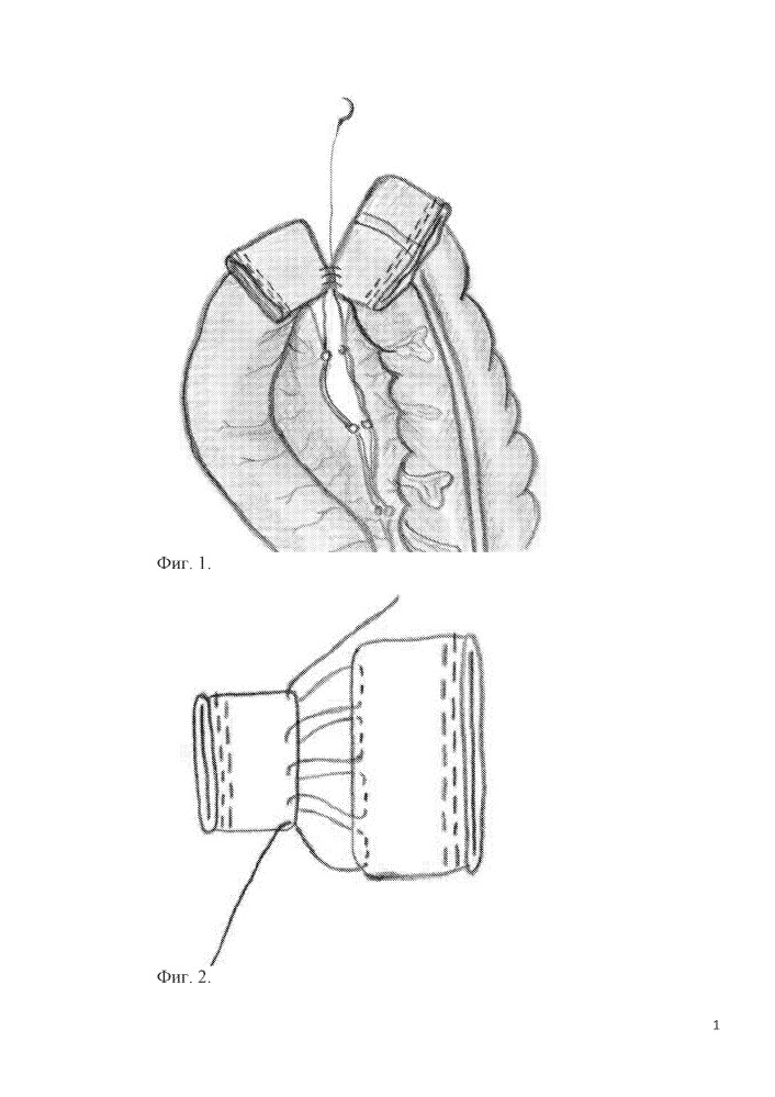 Способ формирования интракорпорального лапароскопического термино-терминального инвагинационного илеотрансверзоанастомоза