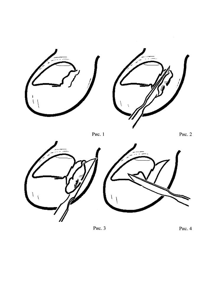 Оперативный способ лечения вросшего ногтя
