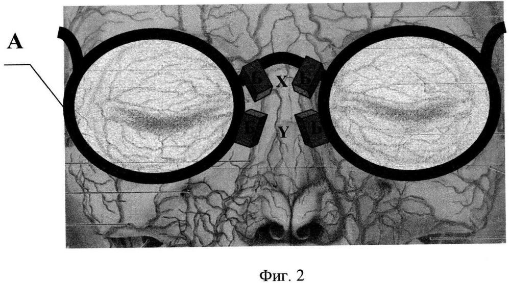 Способ и устройство для определения ишемического состояния головного мозга
