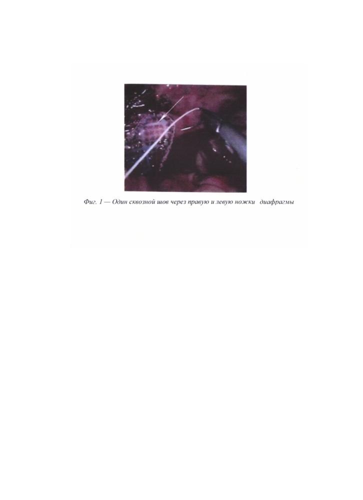Способ лапароскопической пластики больших и гигантских грыж пищеводного отверстия диафрагмы с использованием биокарбонового имплантата