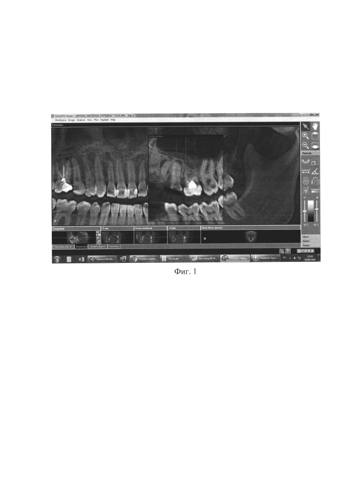 Способ лечения хронического апикального периодонтита с использованием высокоинтенсивного лазерного облучения системы корневых каналов и инъекционного введения тромбоцитарной аутоплазмы
