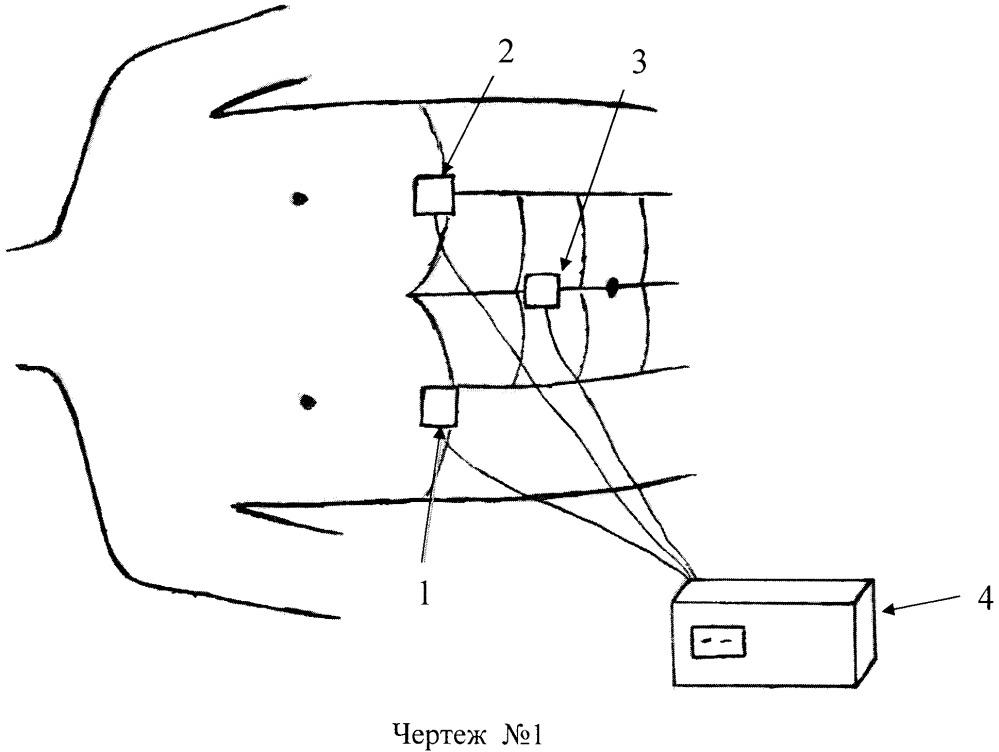 Способ контроля положения интубационной трубки при проведении искусственной вентиляции легких