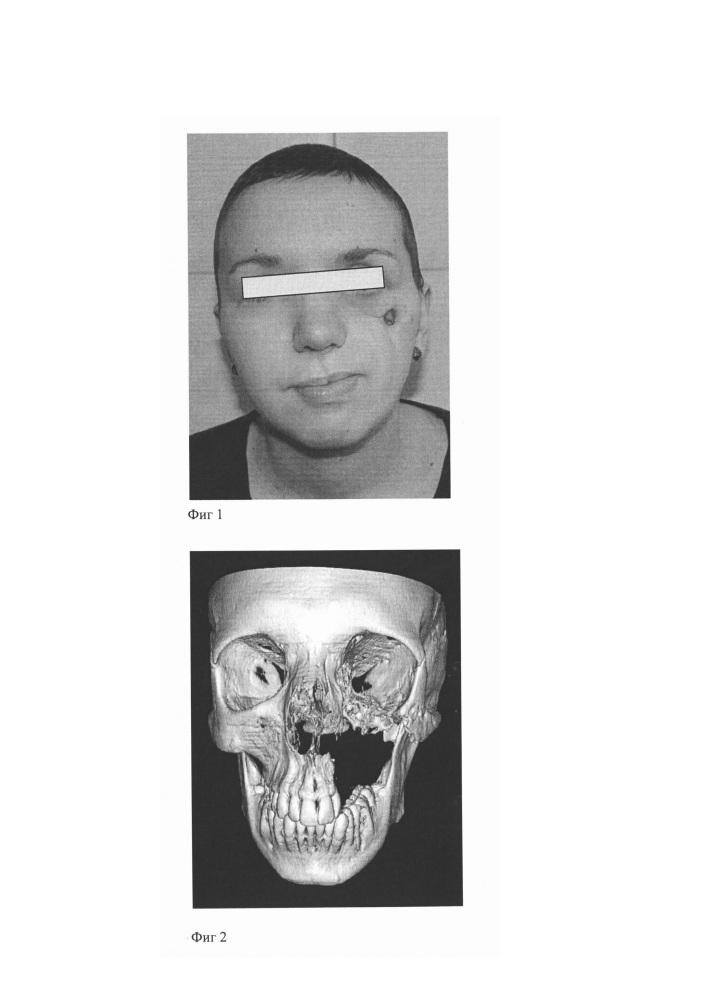 Способ реконструкции сложных дефектов челюстно-лицевой области