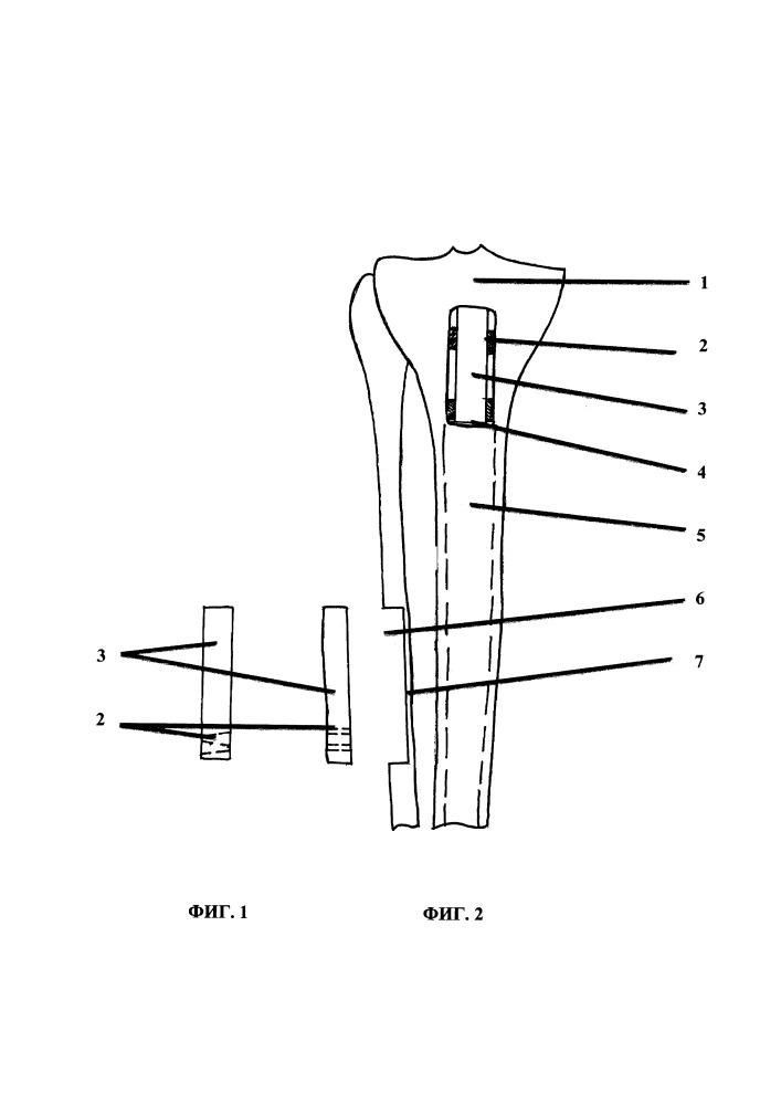 Способ восстановления дефекта метадиафизарного отдела трубчатой кости