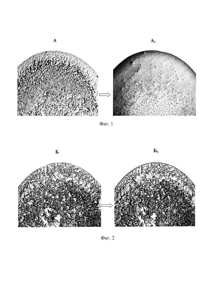 Способ диагностики активности воспалительного процесса при латентном течении хронического пиелонефрита