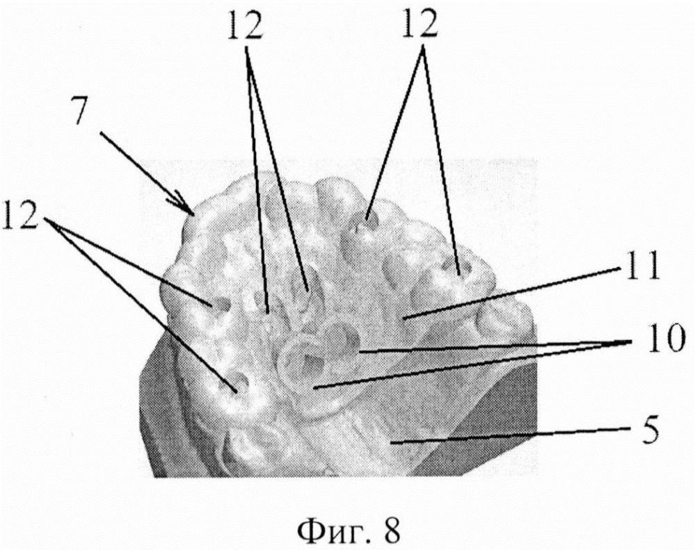 Способ установки ортодонтического аппарата, шаблон и ортодонтический аппарат
