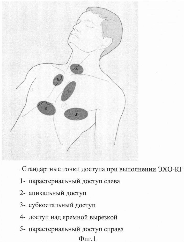 Способ эхокардиографии у пациентов после операции пневмонэктомии в отдаленном периоде