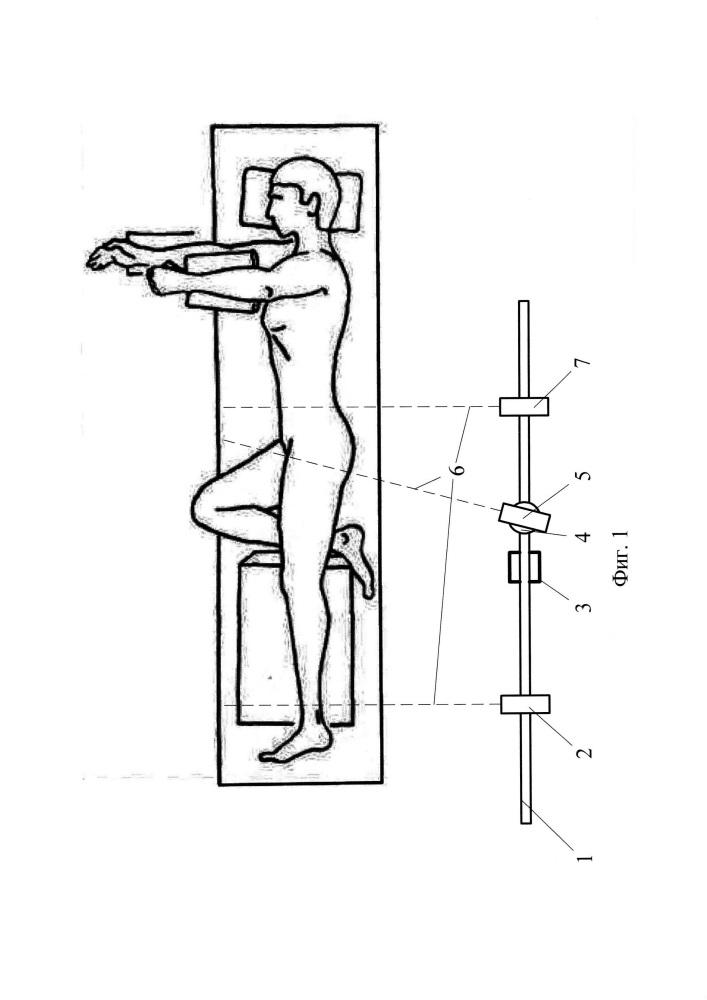Способ определения параметров опорно-двигательного аппарата при эндопротезировании тазобедренного сустава