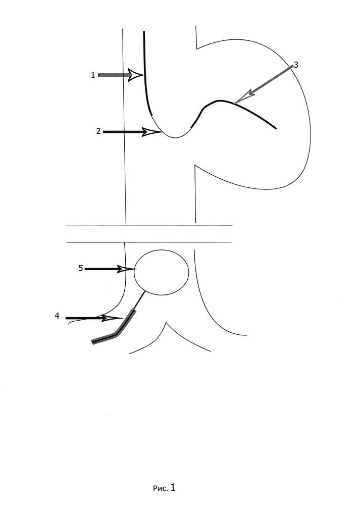 Способ экстракции петли электрода постоянной кардиостимуляции из правых отделов сердца через бедренный доступ