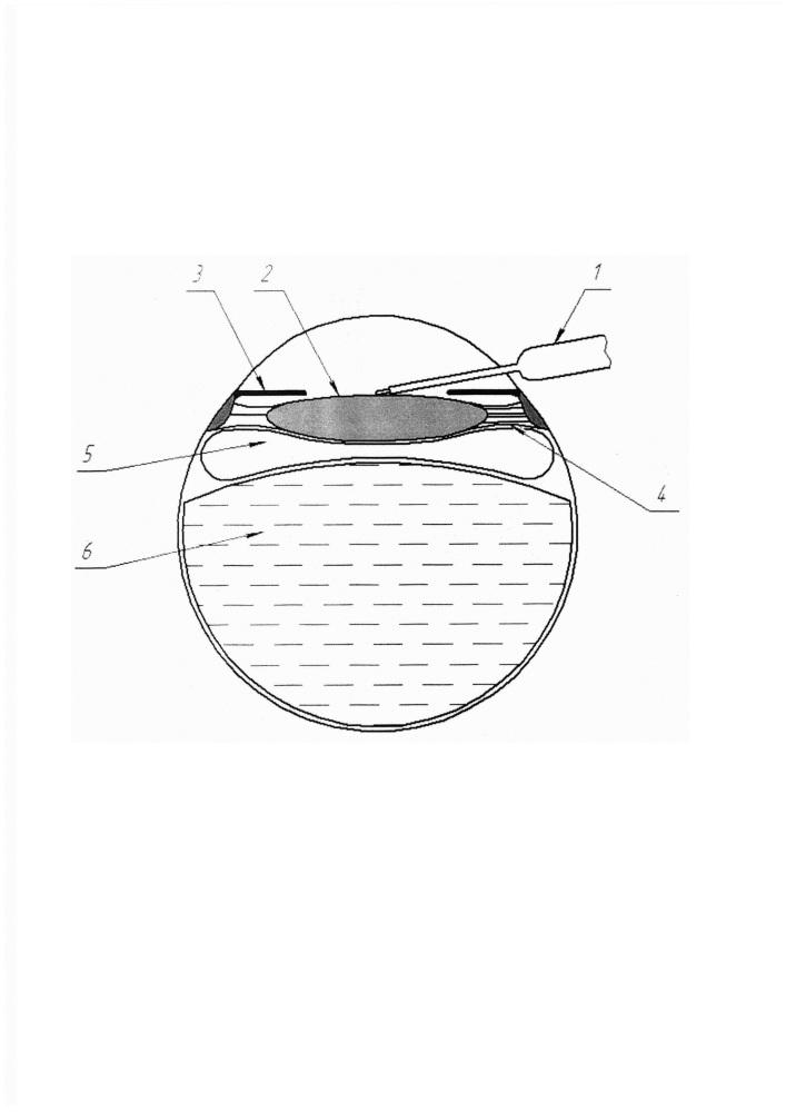 Способ интраоперационной фиксации подвывихнутого хрусталика при факоэмульсификации или лазерной экстракции с имплантацией интраокулярной линзы