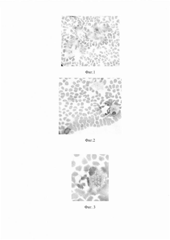 Способ лабораторной ультразвуковой диагностики ранних стадий жеребости