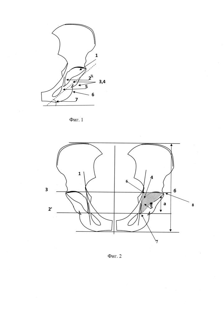 Способ определения места имплантации вертлужного компонента при планировании эндопротезирования тазобедренного сустава