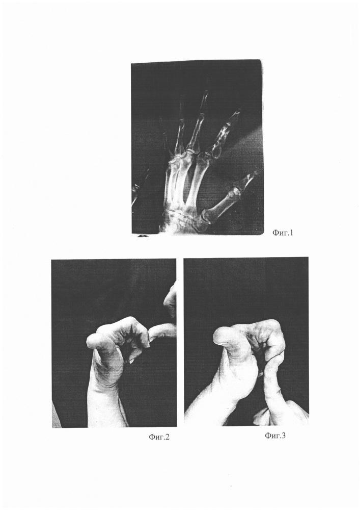 Способ лечения посттравматических контрактур мелких суставов кисти